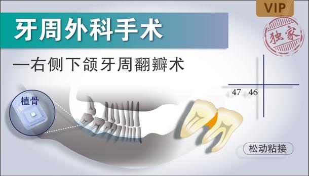 图片 右侧下颌牙周翻瓣术