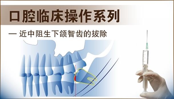 图片 近中阻生下颌智齿的拔除