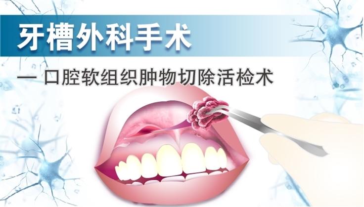 图片 牙槽外科手术 - 口腔软组织肿物切除活检术