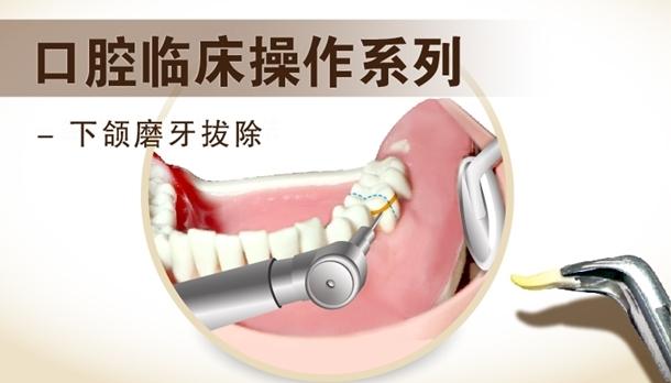 图片 下颌磨牙拔除