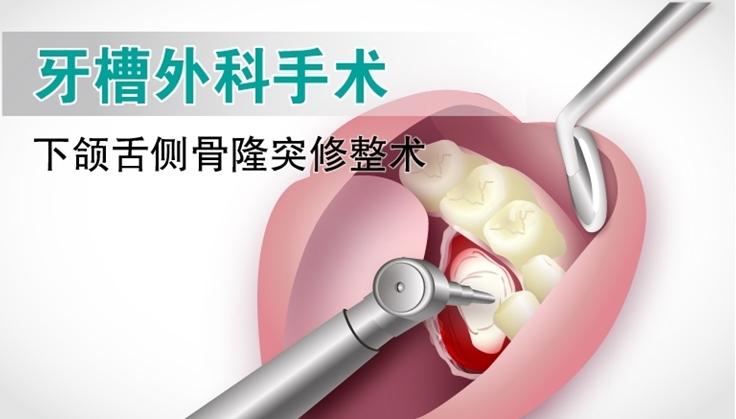 图片 牙槽外科手术 - 颌骨骨隆突修整术