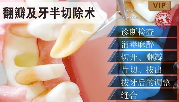 图片 翻瓣及牙半切除术
