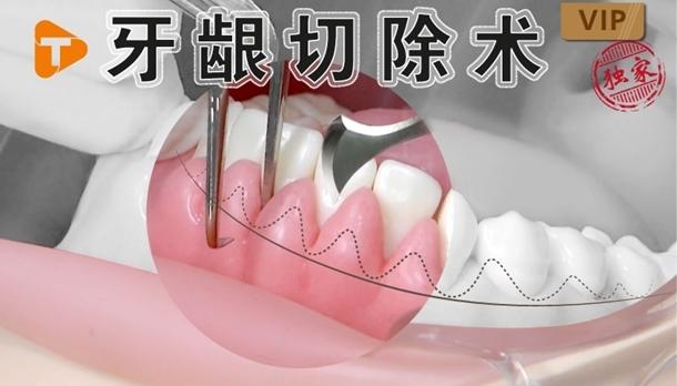 图片 牙龈切除术