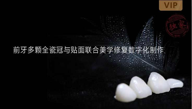 图片 前牙多颗全瓷冠与贴面联合美学修复数字化制作