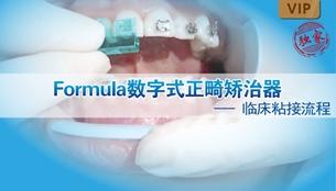 图片 Formula数字式正畸矫治器临床粘接流程