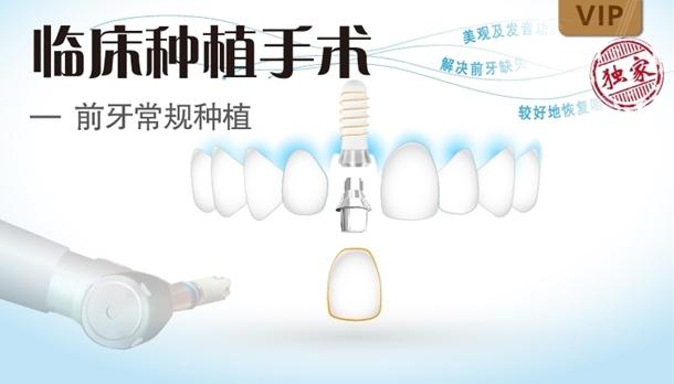 图片 前牙常规种植术