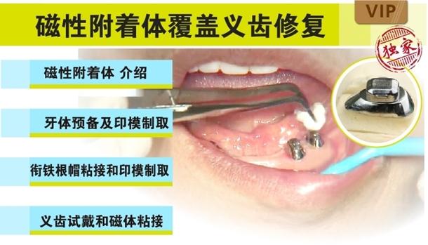 图片 磁性附着体覆盖义齿修复