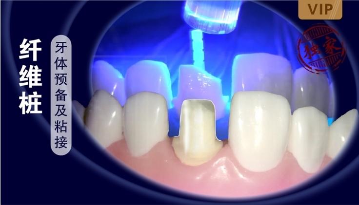 图片 纤维桩牙体预备及粘接