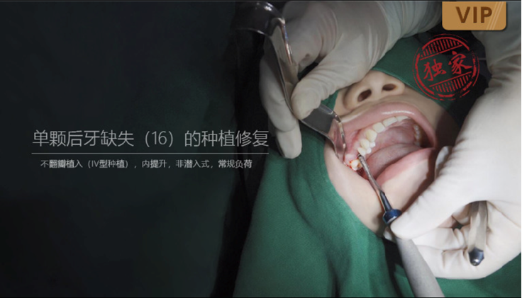 图片 单颗后牙缺失(16)的种植修复