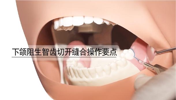 图片 下颌阻生智齿切开缝合操作要点