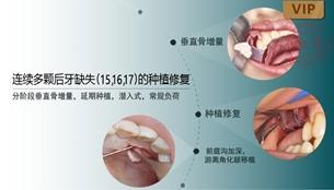 图片 连续多颗后牙缺失(15,16,17)的种植修复