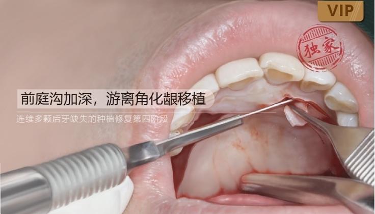 图片 第四阶段:前庭沟加深,游离角化龈移植