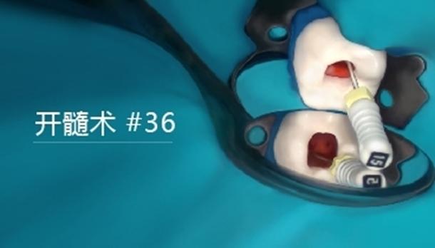 图片 开髓术 #36