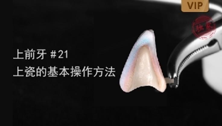 图片 上前牙#21 上瓷的基本操作方法