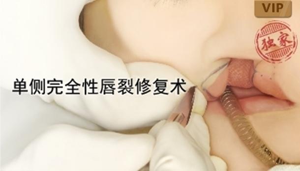 图片 单侧完全性唇裂修复术