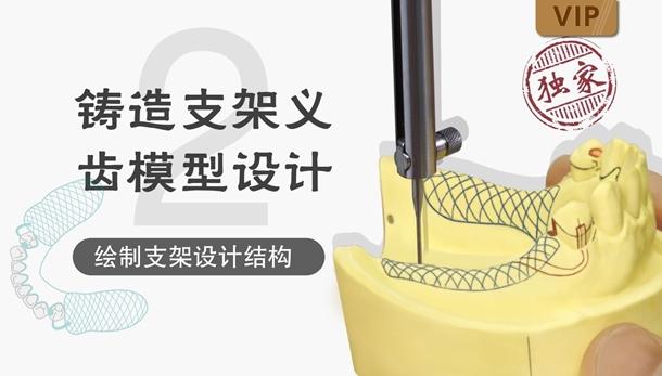 图片 铸造支架义齿模型设计(二)